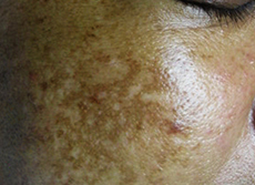 Causes of Dark Spots (Part 2)